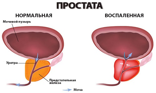 Простата в нормальном и в воспаленном виде