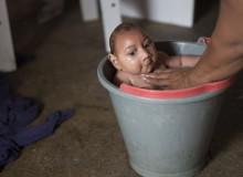 Малыш – жертва вируса Зика