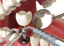 Имплантация зубов. Фото: howarth dental